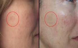 anew vitamin C serum before and after